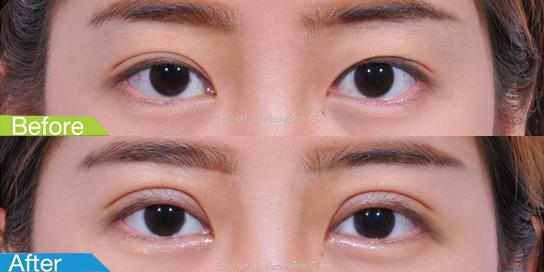 ตาสองชั้นมาสเตอร์พีซ12-1