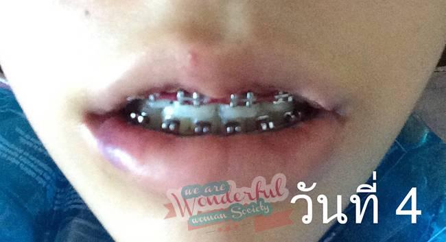 รีวิวศัลยกรรมปากบาง