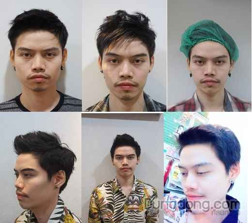 Botox masterpiece clinic 07