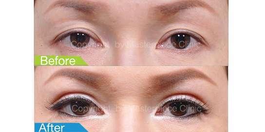 ตาสองชั้นมาสเตอร์พีซ04-1