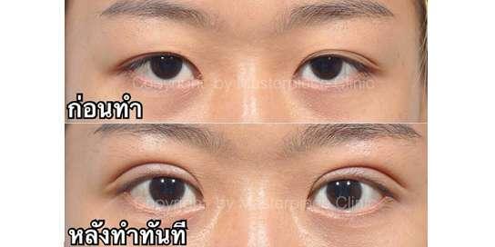 ตาสองชั้นมาสเตอร์พีซ10-1
