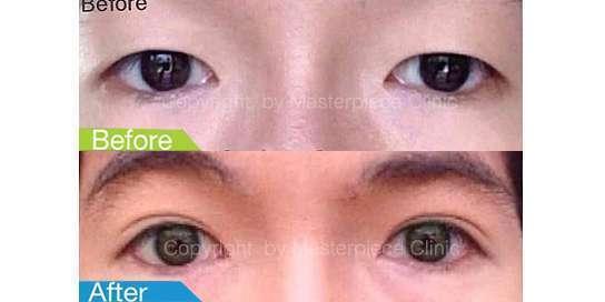 ตาสองชั้นมาสเตอร์พีซ15
