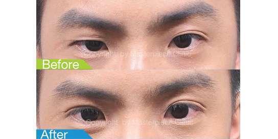 ตาสองชั้นมาสเตอร์พีซ35