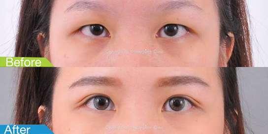 ตาสองชั้นมาสเตอร์พีซ43
