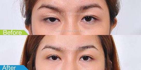แก้ไขกล้ามเนื้อตาอ่อนแรง-มาสเตอร์พีซ02