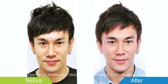 before-after Thermage 01
