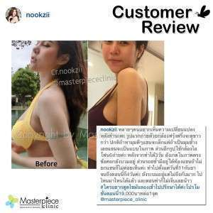 review025