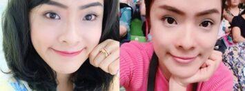 มาแชร์ประสบการณ์จากสาวที่ถ่ายรูปแล้วหน้าบาน เปลี่ยนเป็นสาวหน้าเรียวเป๊ะค่ะ