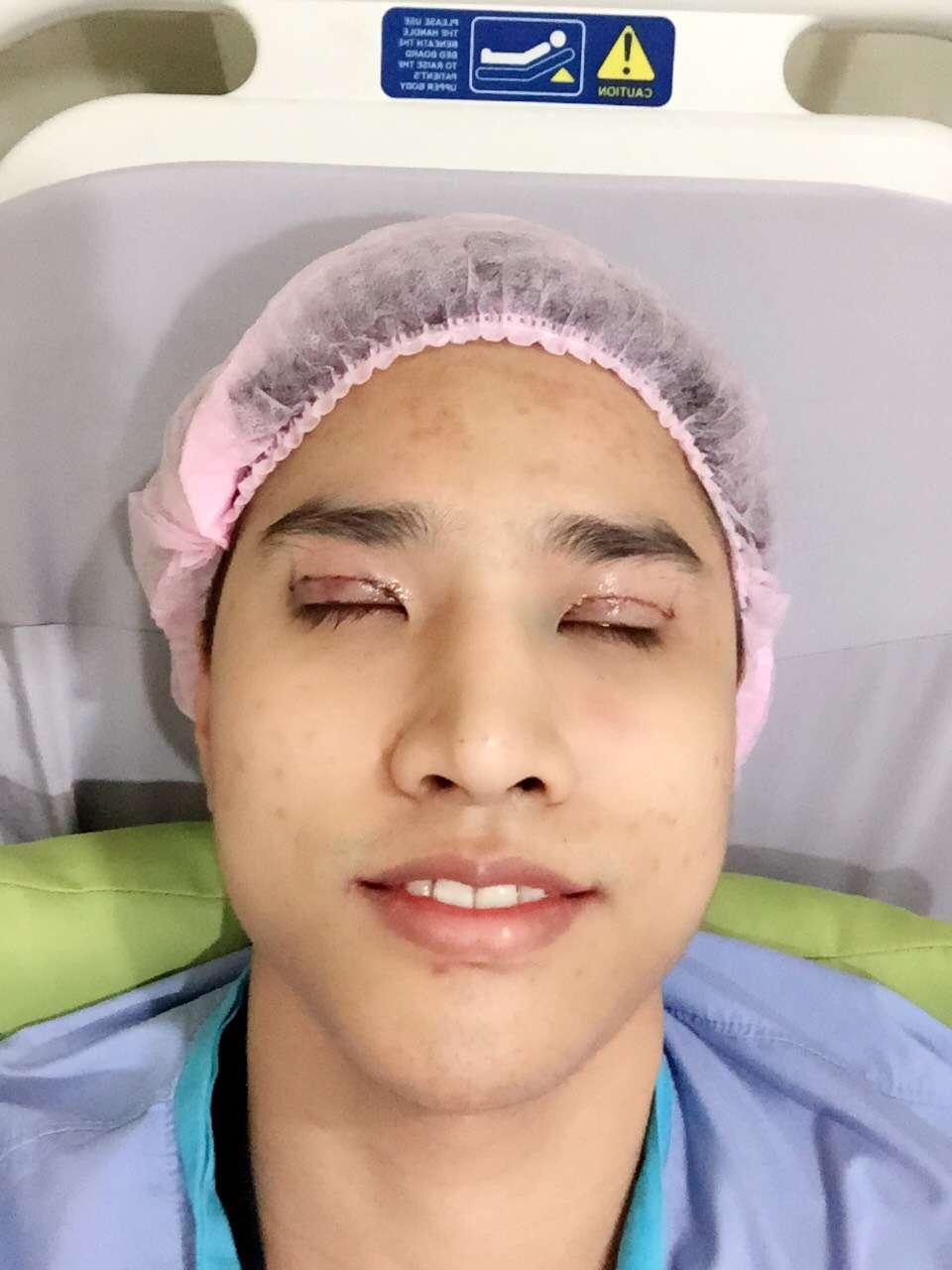 ศัลยกรรมทำตาสองชั้นแบบแมนๆ ที่ มาสเตอร์พีซ คลินิก