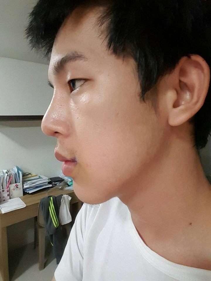 รีวิวยกมุมปาก หมดปัญหาปากเบะ กับ Masterpiece Clinic