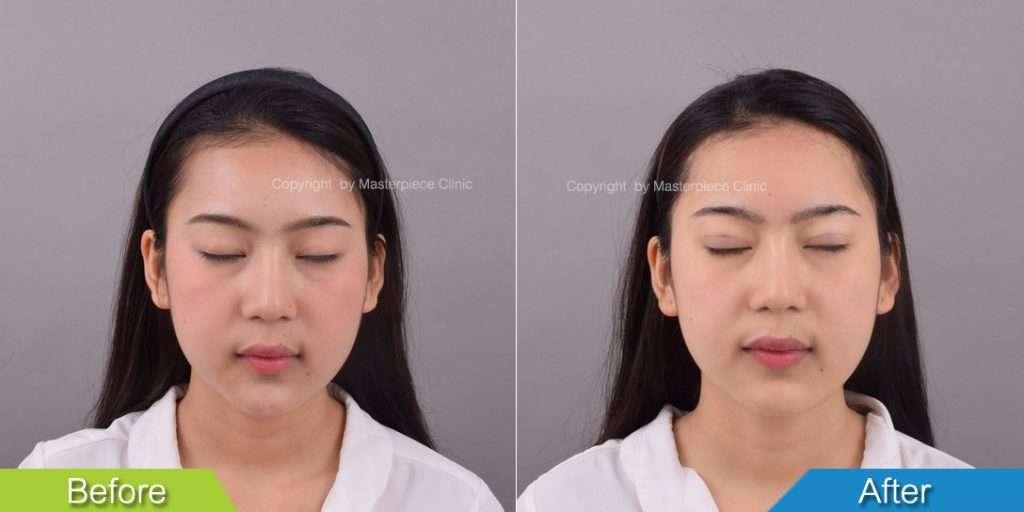 ผลลัพธ์หลังการทำศัลยกรรมตาสองชั้น
