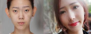 ศัลยกรรมเปลี่ยนตัวเอง…สาวเกาหลีแบบหนูยังยอมสยบหมอไทย!!! (รูปเยอะนะ)