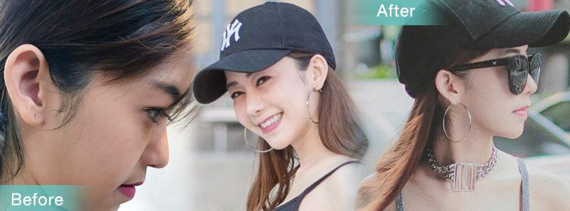 [CR]เบื่อเหนียง! มาดูดไขมันบอกลาคางสองชั้นดีกว่า@-@