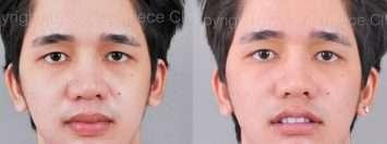 ศัลยกรรมปากบางสำหรับผู้ชาย ที่มาสเตอร์พีซ คลินิก – คุณแบงค์
