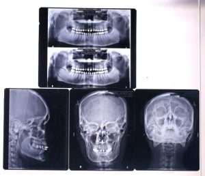 ฟลีม เอ็กซ์เร ก่อนเข้ารับการศัลยกรรมหน้า ลดโหนก เสริมจมูกซิลิโคน ตัดไขมันแก้ม ดูดไขมันหน้า - มาสเตอร์พีซคลีนิก