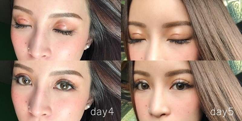 คุณพิพลอย หลังทำตาสองชั้น 4 และ 5 วัน