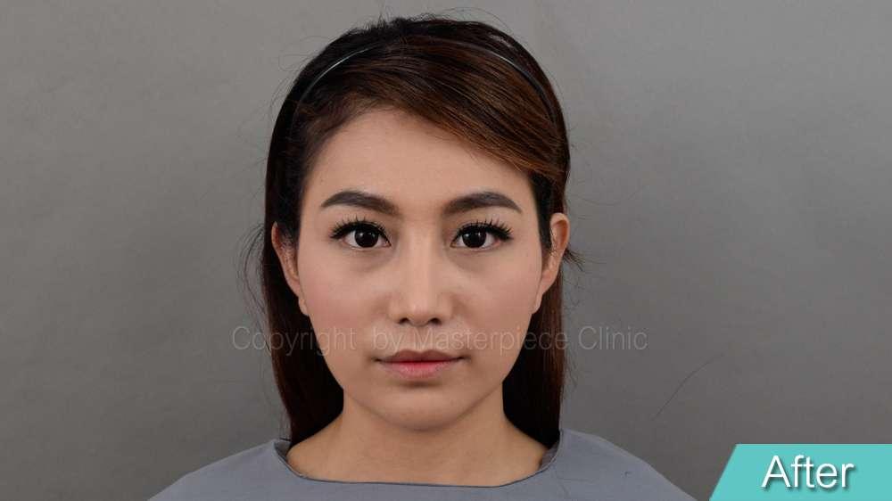 มุมตรง-คุณชมพู่หลังการผ่าตัดเสริมจมูกเทคนิค Nose Reconstruction(1 เดือน)