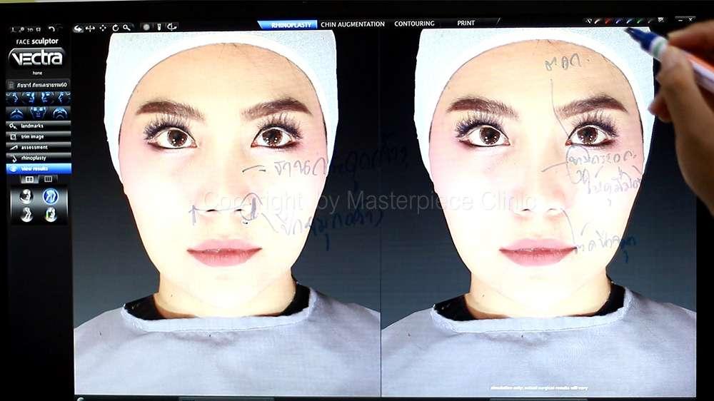 วิเคราะห์โครงสร้างจมูกจากด้านหน้า (จากเครื่อง 3D Facial simulator)