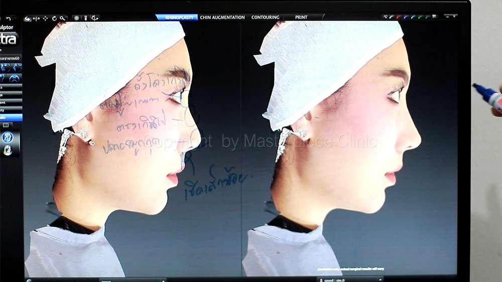 วิเคราะห์โครงสร้างจมูกจากด้านข้าง (จากเครื่อง 3D Facial simulator)
