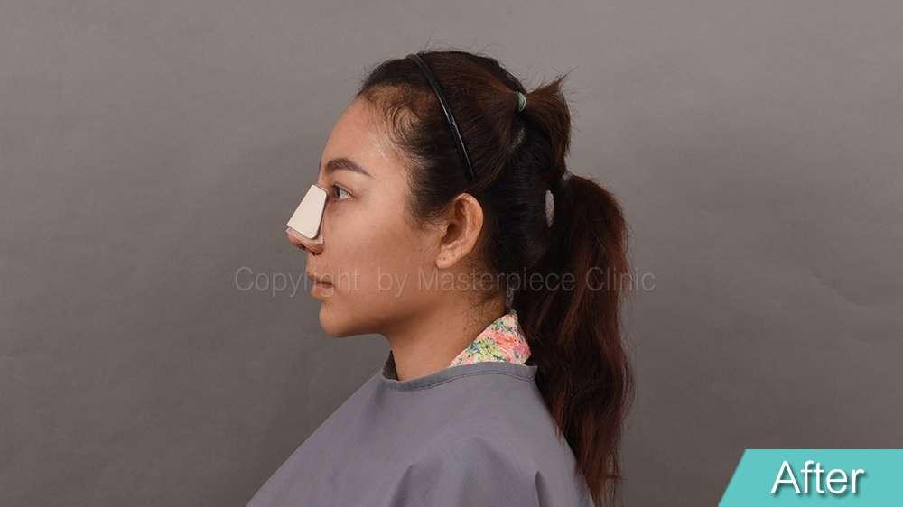 คุณชมพู่หลังการผ่าตัดเสริมจมูกเทคนิค Nose Reconstruction ทันที
