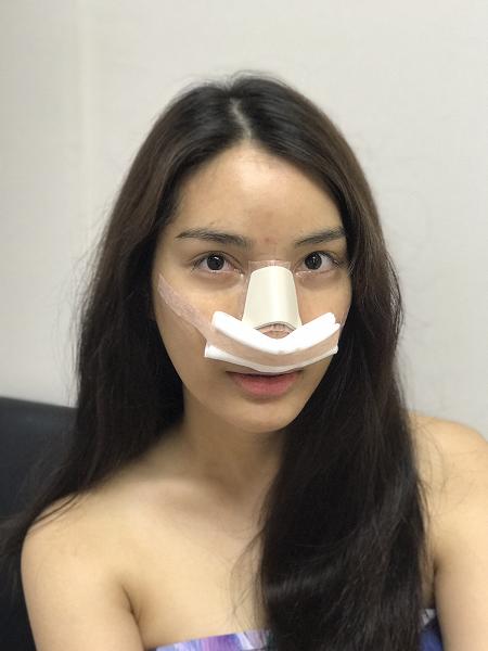 หลังทำแก้จมูก (nose reconstruction)ทันที