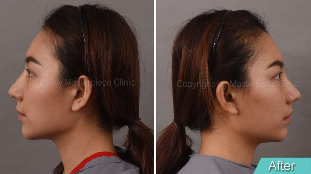 มุมข้าง-คุณชมพู่หลังการผ่าตัดเสริมจมูกเทคนิค Nose Reconstruction(1 สัปดาห์)