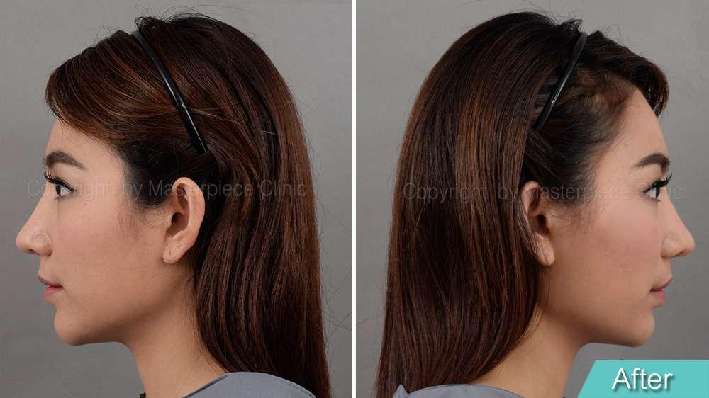 มุมข้าง-คุณชมพู่หลังการผ่าตัดเสริมจมูกเทคนิค Nose Reconstruction(1 เดือน)