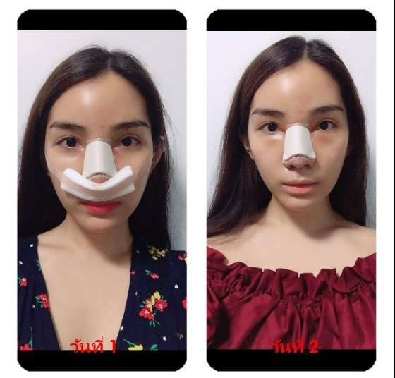หลังทำแก้จมูก (nose reconstruction) 1 และ 2 วัน