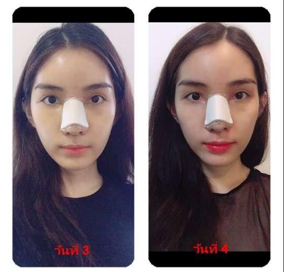 หลังทำแก้จมูก (nose reconstruction) 3 และ 4 วัน