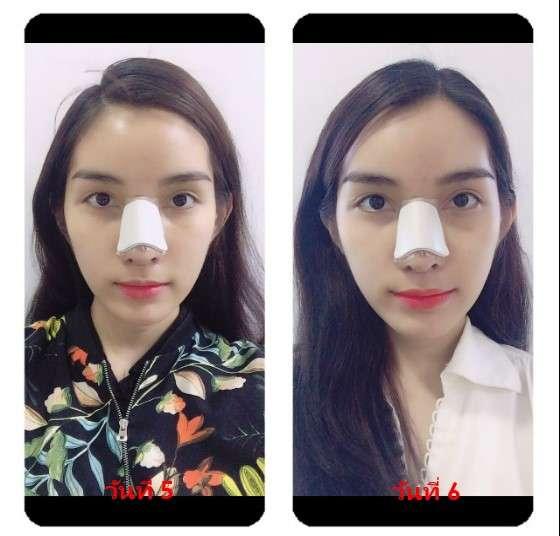 หลังทำแก้จมูก (nose reconstruction) 5 และ 6 วัน