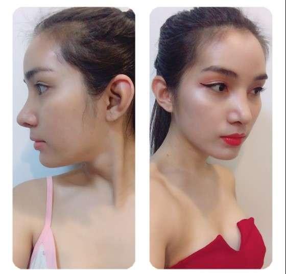 หลังทำ แก้จมูก (nose reconstruction)