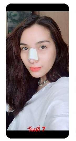 หลังทำแก้จมูก (nose reconstruction) 7วัน