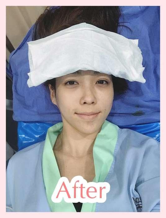 หลังผ่าตัด เสริมหน้าผาก
