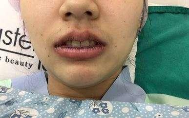 ศัลยกรรมปากบาง ปากกระจับ