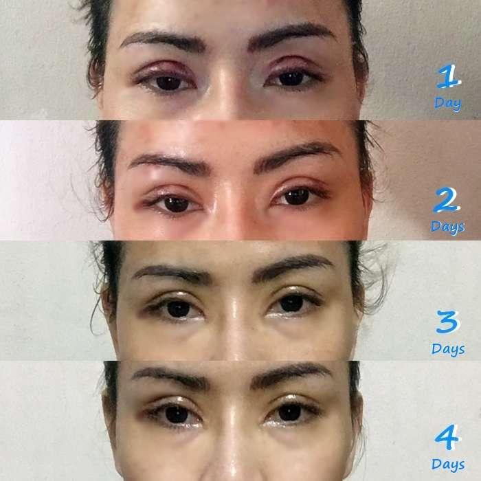 ตา 2 ชั้น 1-4 วัน