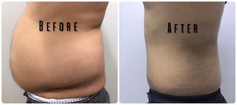 ดูดไขมัน Body Vaser Liposuction