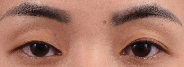 ตาสองชั้น