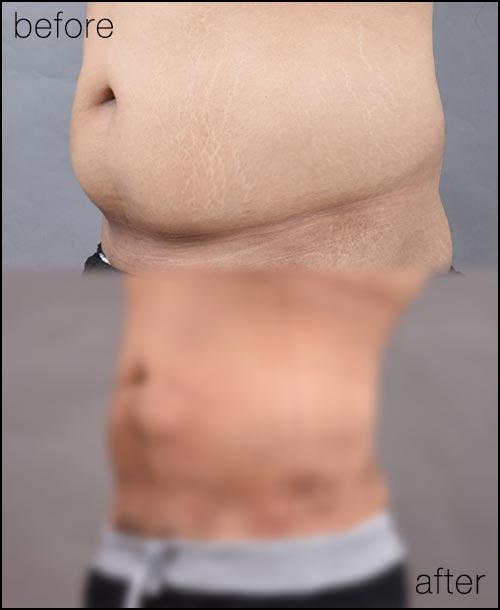 ดูดไขมันหน้าท้อง