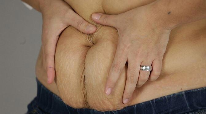ตัดหนังหน้าท้อง Tummy Tuck